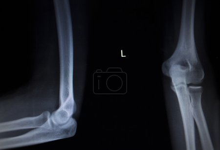 X-ray orthopedics Traumatology scan of elbow joint injury