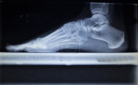 Photo pour X-ray orthopedic medical CAT scan of painful foot injury in traumatology hospital clinic showing load weight bearing. - image libre de droit