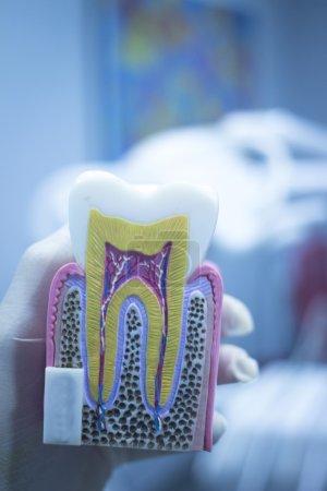 Photo pour Dent dentaire modèle casting montrant carie boîtier douleur, émail et racines dans profil intérieur de photo de la dent. - image libre de droit