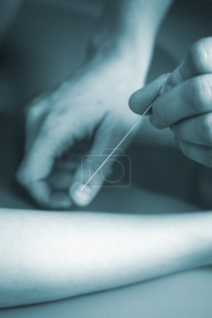 Doctor hand acupuncture needle patient arm