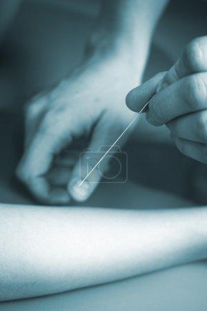 Photo pour Médecin main acupuncture aiguille bras patient femelle jeune vie réelle photo dans centre médical hôpital clinique de thérapie alternative. - image libre de droit