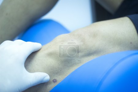 Patient leg in physical therapy physiotherapy