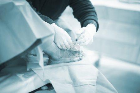 Photo pour Hôpital d'urgence orthopédie et traumatologie chirurgie opératoire clinique médicale vraie vie photo dans opération orthopédique arthroscopie de pied, la cheville et la jambe. - image libre de droit