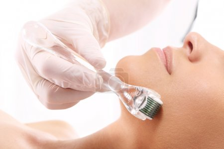 Roller ,microneedle mesotherapy, rejuvenating treatment