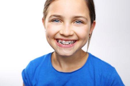 Beautiful smile, orthodontics.