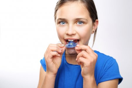 Colored dental braces .