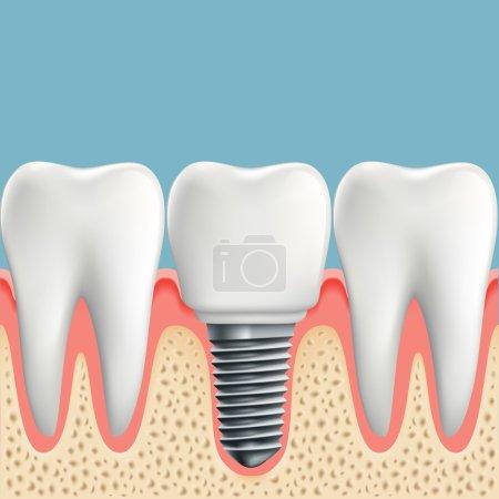 Human teeth and Dental implant