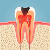 Human tooth with caries