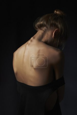 young woman with naked back. sad girl