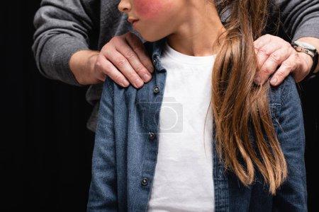 Photo pour Vue recadrée du père embrassant fille avec ecchymose isolé sur noir - image libre de droit