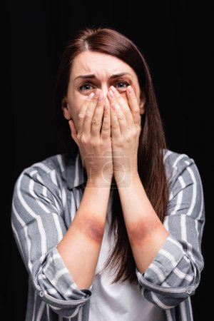 Photo for Depressed woman with bruises on hands covering mouth isolated on black - Royalty Free Image