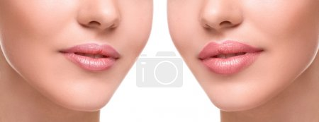 Female lips  before and after augmentation...