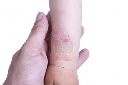 Photo pour Eczéma sur la peau de la main de l'enfant - image libre de droit