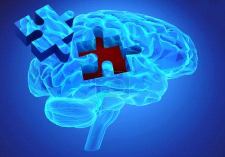 Photo pour Recherche sur le cerveau humain et perte de mémoire comme symbole du concept d'alzheimer avec des pièces manquantes du puzzle - image libre de droit