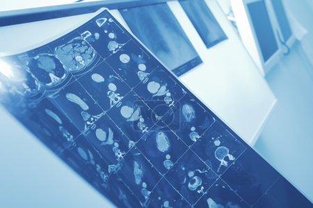 MRI image of patient in doctors office