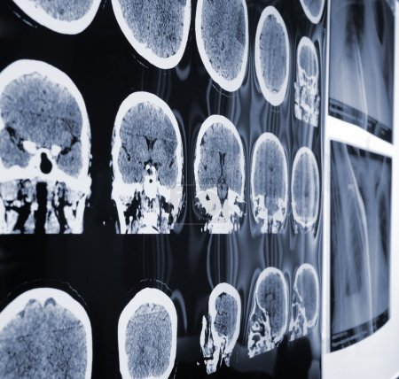 Unusual view of the MRI, X-ray images of the patient