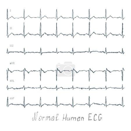 Normal healthy human illustration of ECG...