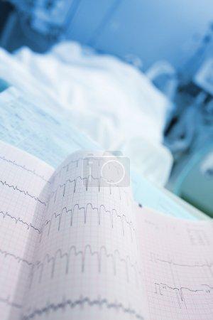 ECG printout near of patients bed...