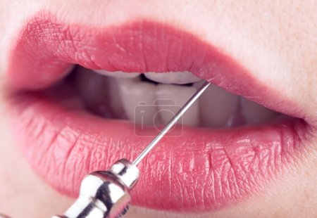 Female lips and medical needle, concept of plastic and aesthetic
