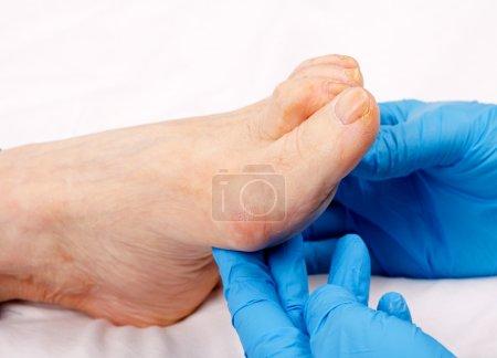Elderly feet care