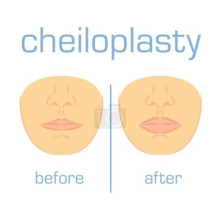 Correction form size lip white back