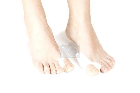 Photo pour Doigts de redresseurs orthopédique sur un fond blanc les pieds - image libre de droit
