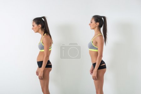 Woman with impaired posture position
