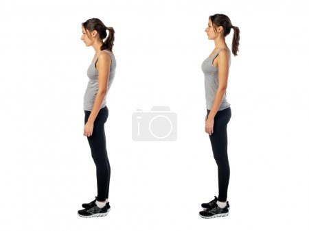 Woman with impaired posture position defect scolio...
