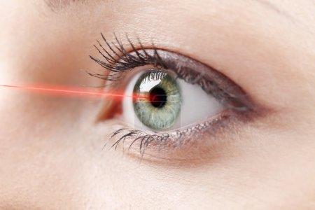 medical laser treatment