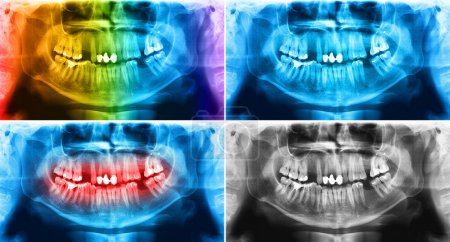 X-ray teeth mandible human skull