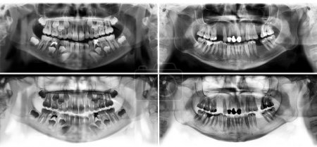 Panoramic dental x-ray tooth's of young man of 30 thirty and child of 7 seven years