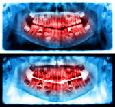 Panoramic dental x-ray of child of seven 7 years