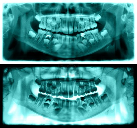 Green panoramic dental x-ray of child of seven years