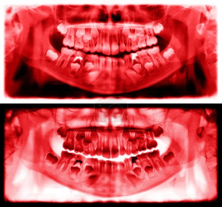 Red panoramic dental x-ray of child of seven 7 years