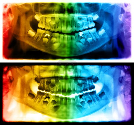 Panoramic dental x-ray of child of seven years