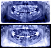Violet panoramic dental x-ray of child of seven 7 years