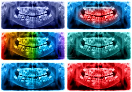 Colored panoramic dental x-ray of child of seven 7 years