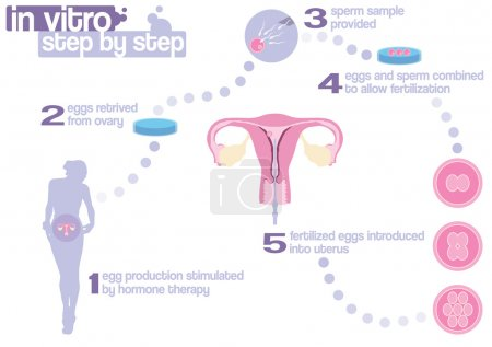 Photo for Scheme of in vitro fertilization - step by step - Royalty Free Image