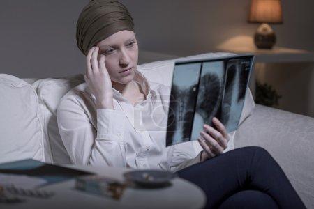 Photo pour Femme cancer jeune inquiet en regardant sa photo xray - image libre de droit