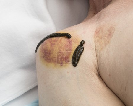Treatment of medical leeches people and acupuncture.