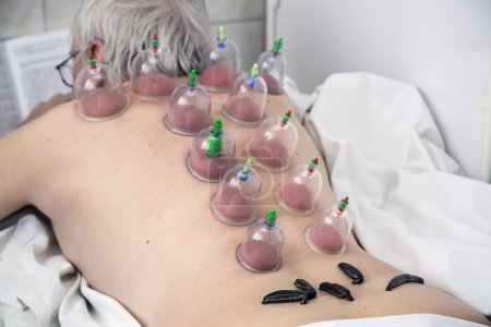 Treating people by vacuum therapy and medical leeches