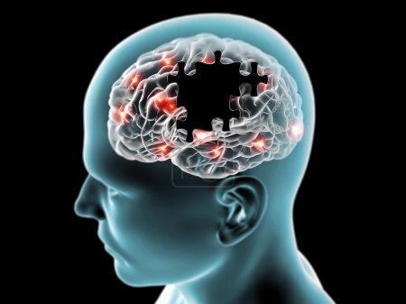 Brain degenerative diseases Parkinson, Alzheimer,