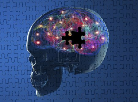 Photo for Brain degenerative diseases Parkinson, Alzheimer, puzzle - Royalty Free Image