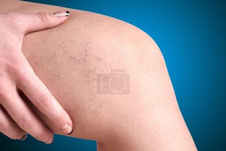 Varicose veins in women...