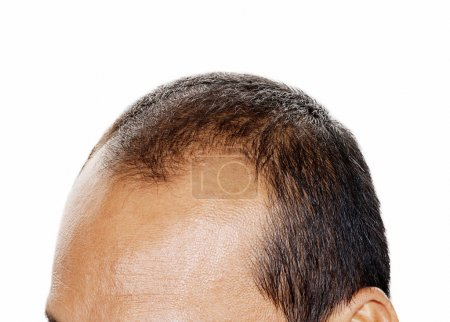 Hair loss , Male head with hair loss symptoms front side.