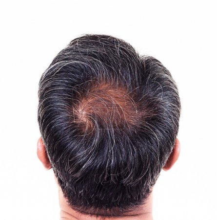 Photo for Hair loss and grey hair, Male head with hair loss symptoms back side. - Royalty Free Image