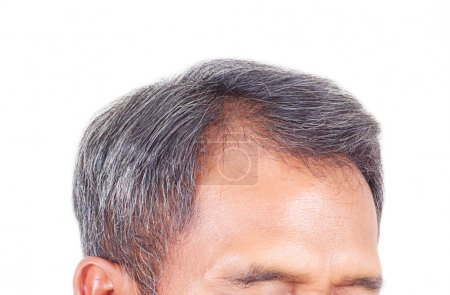 Photo for Hair loss and grey hair, Male head with hair loss symptoms front side. - Royalty Free Image
