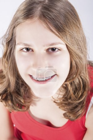 Medicine and Dental Concepts and Ideas. Smiling Teenager Girl Teeth Brackets. Against White Bckground.