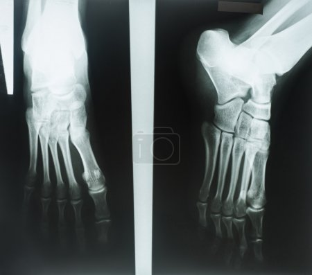 X-rays of human foot