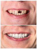 Obnova pronikavý zubů před a po léčbě